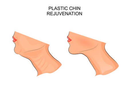 CHIN: illustration of a chin before and after plastic surgery