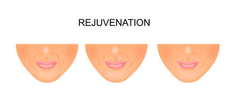 reconstructive: illustration of reduce wrinkles around the mouth. rejuvenation Illustration