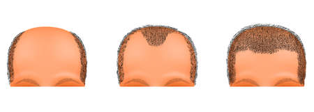 insecurity: illustration of a male head suffering from baldness. hair transplantation