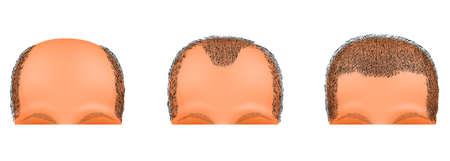 calvicie: ilustración de una cabeza masculina sufre de calvicie. el trasplante de pelo