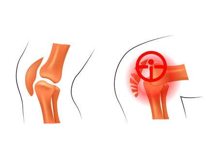 dislocation: ilustración de la rótula, luxación y fractura. traumatología y ortopedia