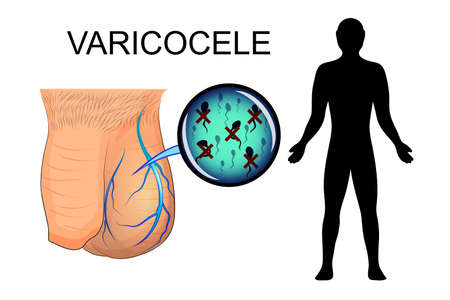 illustration of the male sexual organ, suffering from varicocele. dilated veins. the inactive spermatozoa. Illustration