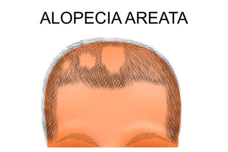 円形脱毛症で苦しんでいる人の頭のイラスト  イラスト・ベクター素材