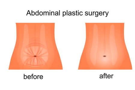 女性の腹部の腹部の前後の図  イラスト・ベクター素材