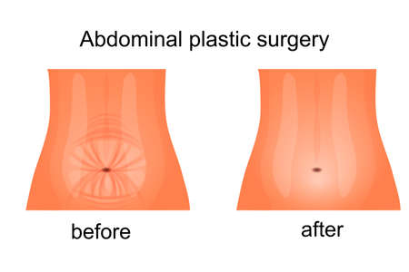 tight body: illustration of the female abdomen before and after abdominoplasty