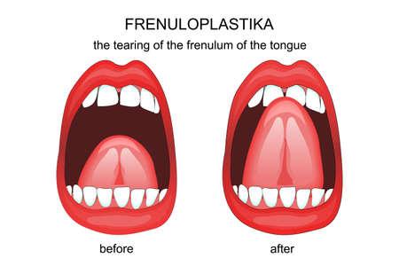 comunicacion oral: illustration of dissection of the frenulum of the tongue. frenuloplastika Vectores
