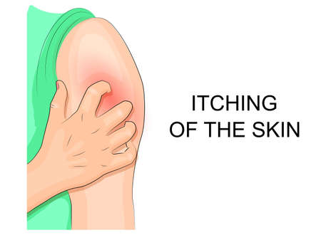 infection: illustration itching skin infection. hand combing shoulder