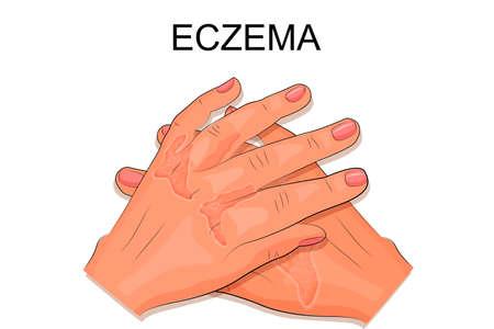 illustratie van de handen van een patiënt die lijdt aan eczeem