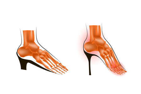 tarsal: illustration of the skeleton of the foot on a low and a high heel