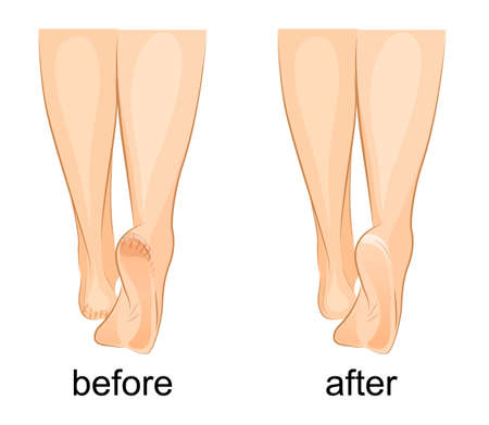 illustration of a female feet, cracked heels and healthy