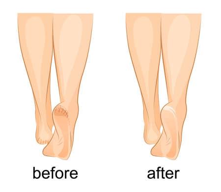 ilustração de um pé feminino, calcanhares rachados e saudável