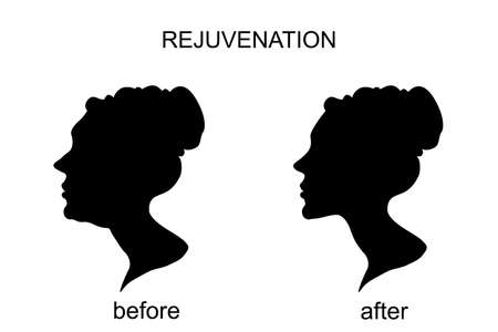 liposuction: Illustration of icons for rejuvenation before and after.a face-lift. chin