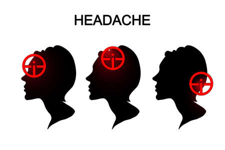 neuralgia: illustration of headache in women. migraine.