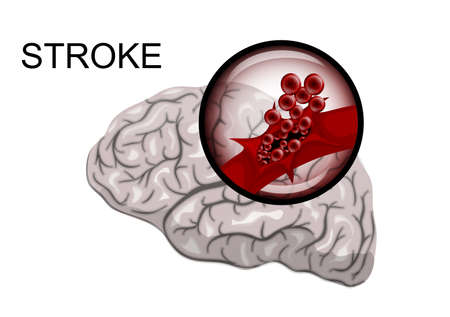 rupture: illustration of a rupture of the vessel. hemorrhagic stroke. insult. red blood cells.