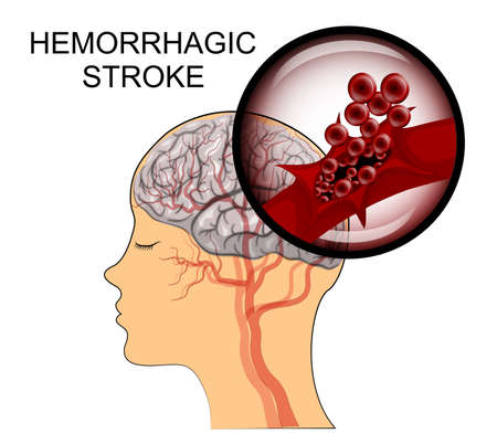 neuroscience: illustration of a rupture of the vessel. hemorrhagic stroke. insult. red blood cells.