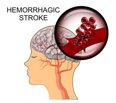 hemorragia: ilustración de una ruptura del vaso. ataque hemorragico. insulto. las células rojas de la sangre.