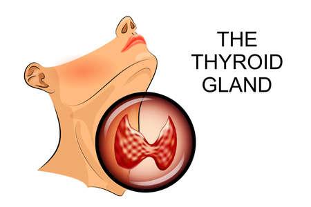 homeostasis: illustration of ultrasound diagnostics of thyroid diseases