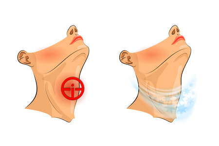 illustration of sore throat. sore throat, pain relief Illustration