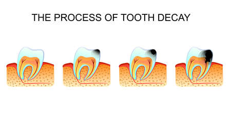 illustration of tooth decay tooth decay 向量圖像