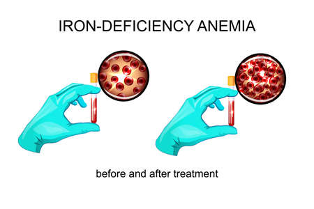 reanimation: illustration of blood in vitro. red blood cells for iron deficiency anemia