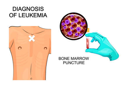 illustration of the diagnosis of leukemia. Bone marrow puncture Vector Illustration