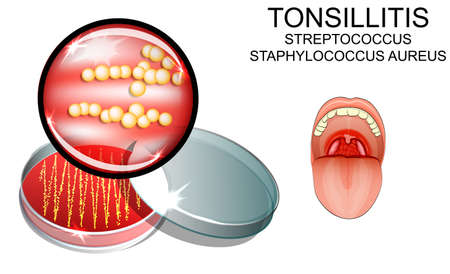 tonsillitis: illustration of sore throat. strep. the causative agent of the infection. bacterial seeding.