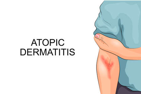 illustration of atopic dermatitis. allergies. dermatology. inflammation