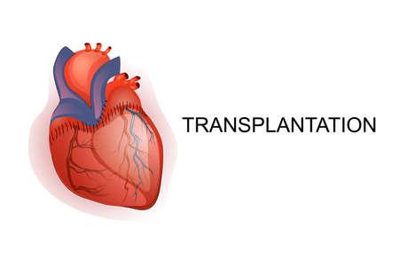 blood transfer: illustration of organ Transplantation.