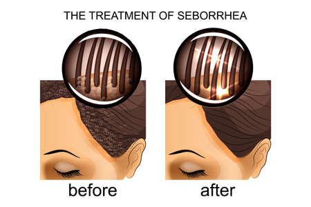illustration of the treatment of seborrhea of the scalp. before and after