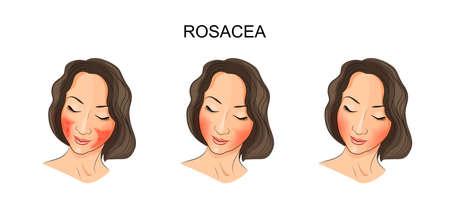 pustule: illustration of girls face,  damaged rosacea. dermatology