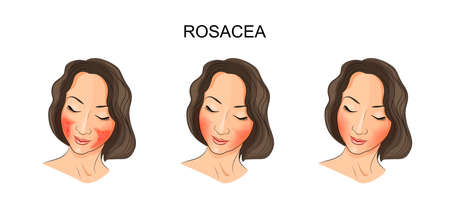 illustration of girl's face,  damaged rosacea. dermatology