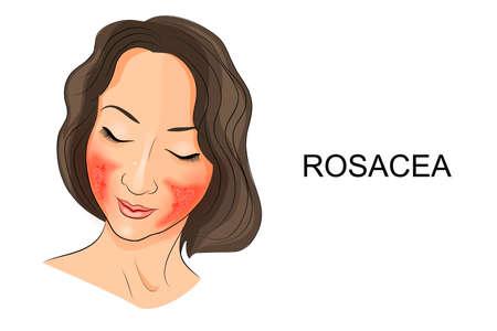 Ilustracja z trądzikiem różowatym na twarzy dziewczynki. Dermatologia