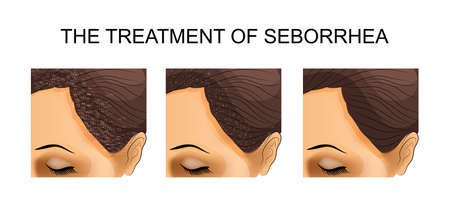after: illustration of the treatment of seborrhea. before and after