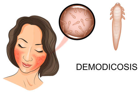 illustration of a woman's face affected by demodicosis. Demodex mite under magnification