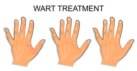 lesions: illustration of a hand affected by the wart Illustration