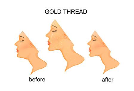 Ilustracja odmładzania twarzy i szyi ze złotym nicią. Przed i po