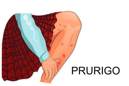 illustration of pruritus, itching and skin lesions in a child