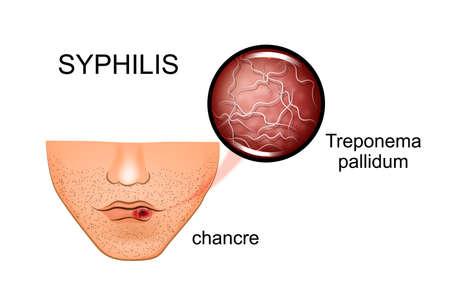 梅毒のイラスト。症状と原因物質
