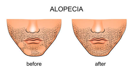 illustration of alopecia areata on the male chin