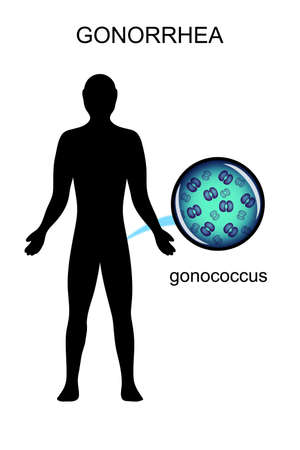 causative: illustration of genital infections. the causative agent of gonorrhea