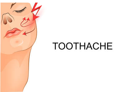 aching: vector illustration of a toothache at the girl Illustration