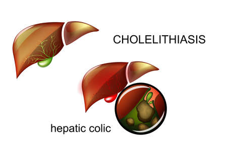 vector illustration of Cholelithiasis. Stones in the gallbladder.