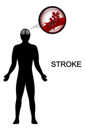 neurosurgery: vector medical illustration of the silhouette of a man. the rupture of the vessel head