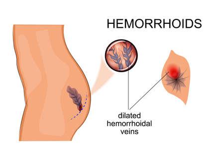ilustración vectorial para publicaciones médicas sobre el tema de la cirugía