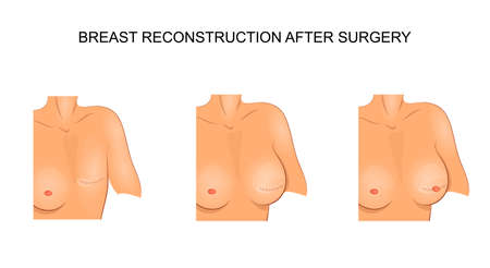 vector illustration for medical publications. carcinoma. reconstructive surgery 일러스트