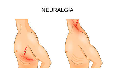 neuralgia: vector illustration of a male torso for medical publications
