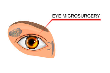 vitreous body: vector illustration of eyes. microsurgery in ophthalmology. for medical publications.