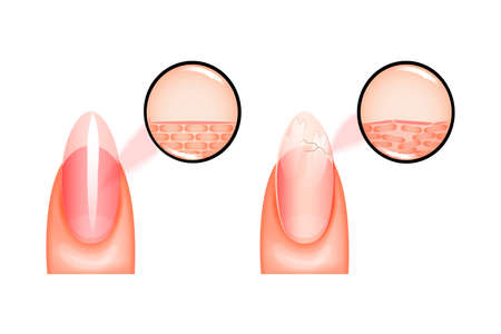 vector illustration of nail healthy and sick under magnification. for medical and promotional publications Illustration