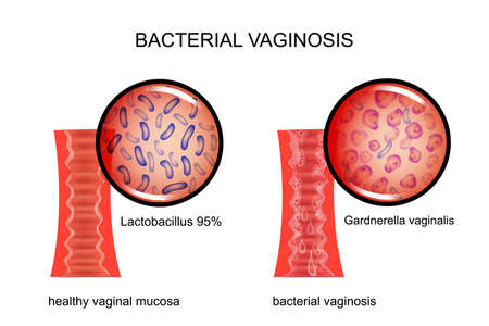 vector illustration of the vagina affected by bacterial vaginosis. for medical publications Vectores