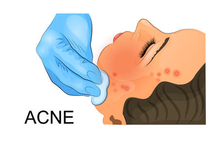 skin facial cosmetic remedy acne inflammation.  For medical and other publications.